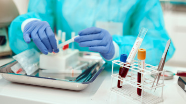 koronavírus járvány mintavétel teszt covid-19 magyar adat